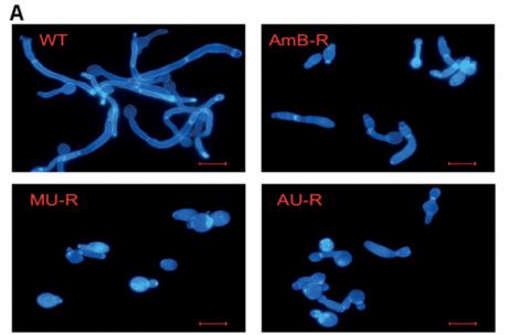 Filamentation response for wild-type, AmB-resistant (AmB-R), AmBMU-resistant (MU-R), and AmBAU-resistant (AU-R) C. albicans.